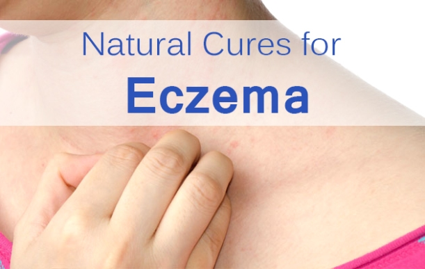 Natural Cures for Eczema